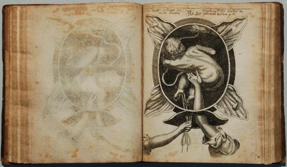 1690_Handgriff_der_Justine_Siegemundin